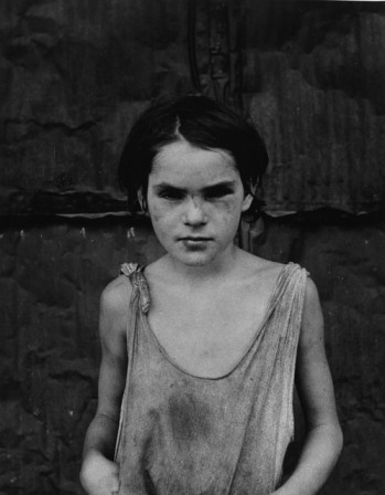 Dorothea Lange Damaged Child Shacktown Elm Grove Oklahoma 1936.jpg